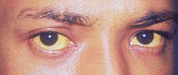 Jaundice_eye_new