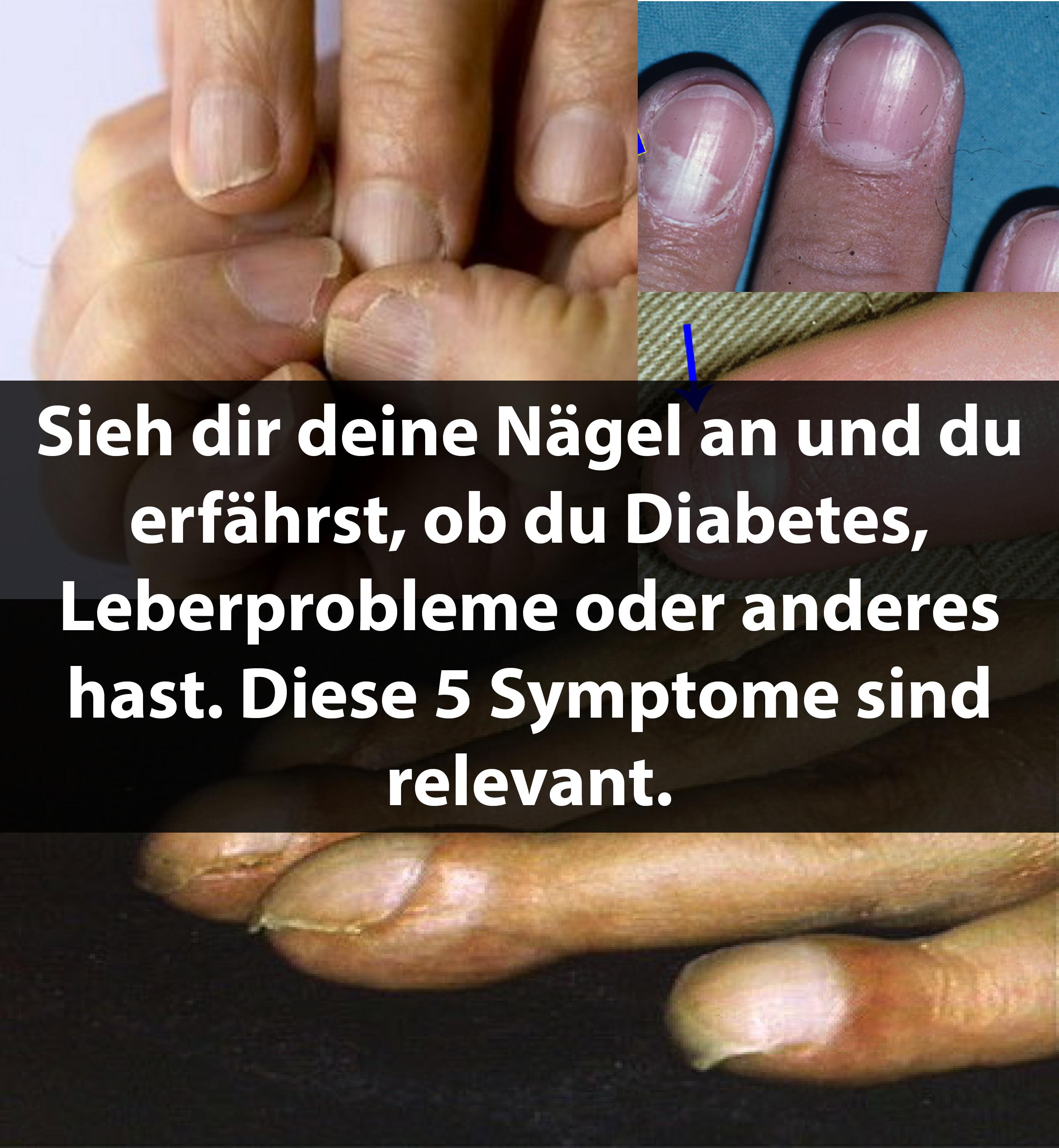 Sieh dir deine Nägel an und du erfährst, ob du Diabetes, Leberprobleme oder anderes hast. Diese 5 Symptome sind relevant.