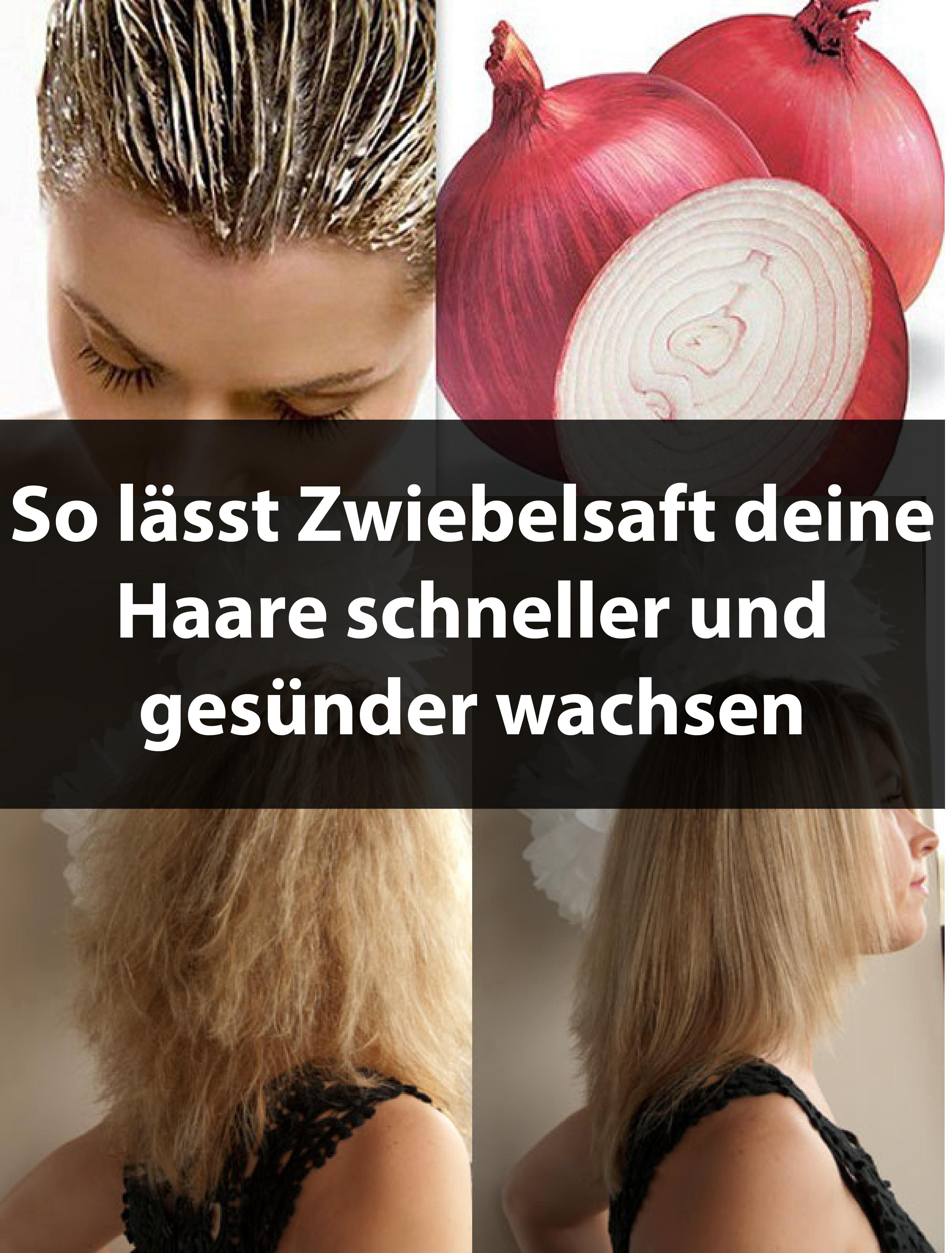 So lässt Zwiebelsaft deine Haare schneller und gesünder wachsen