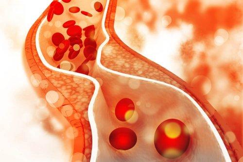 4 Mandeln am Tag senken den Cholesterinspiegel