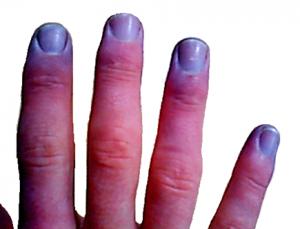 Cyanosis-adult_fingertips