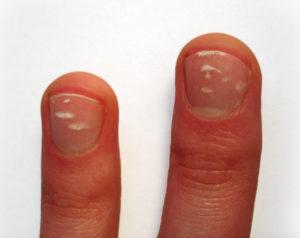 Finger_woelkchen