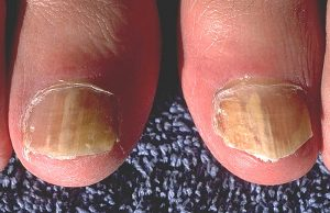 Onychomycosis_due_to_Trychophyton_rubrum,_right_and_left_great_toe_PHIL_579_lores