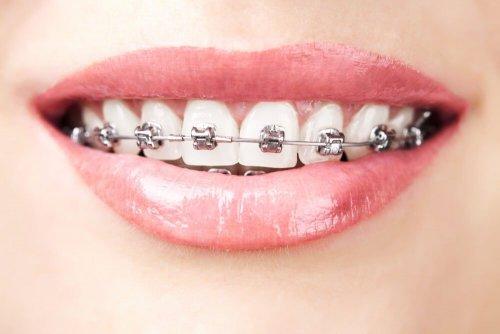 Frauenlächeln mit Zahnspange