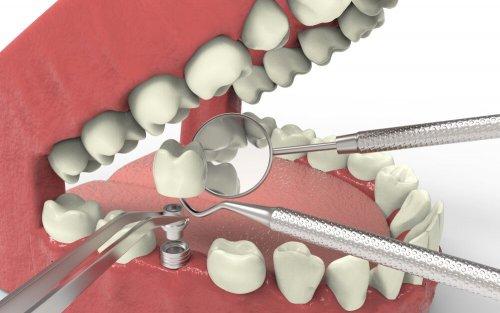 Abbildung eines Zahnimplantats