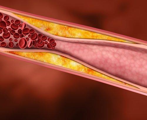 7 Mythen, die Sie über Cholesterin wissen sollten