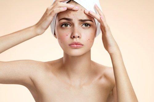 Verwendung von Wasserstoffperoxid in Schönheitsbehandlungen