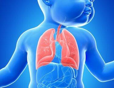 Bronchiektase: alles, was Sie wissen müssen