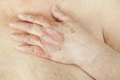 Die häufigsten Erkrankungen der Haut
