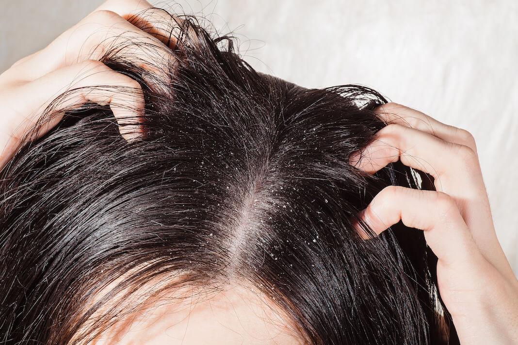 Schuppen haare