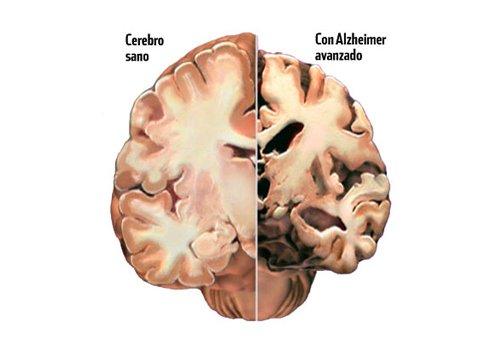 Alzheimer durch die Augen erkennen