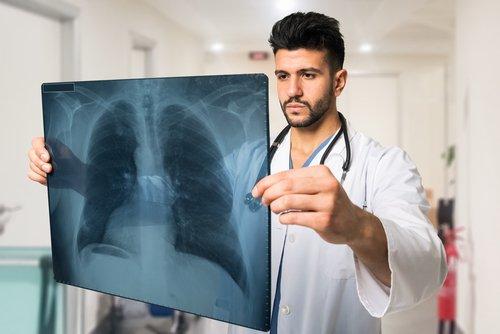 Pneumothorax: alles, was Sie wissen müssen